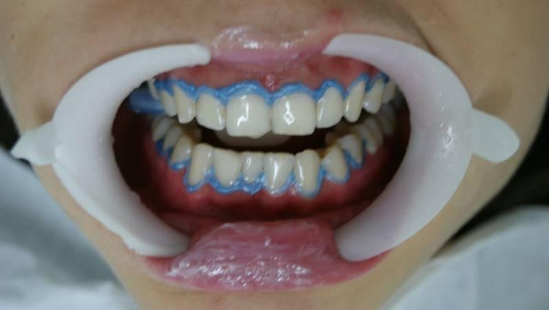 Clareamento Dental De Consultorio Preco Em Pinheiros Clareamento