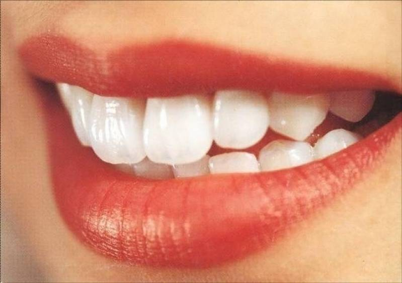 Clareamento Para Dentes Com Resina Mr Esteticadental