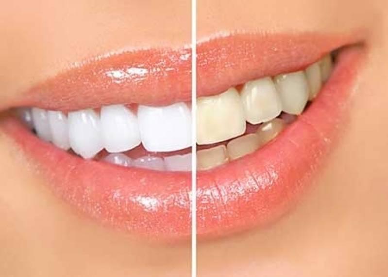 Clinica De Clareamento Dental De Dentista Na Bela Vista