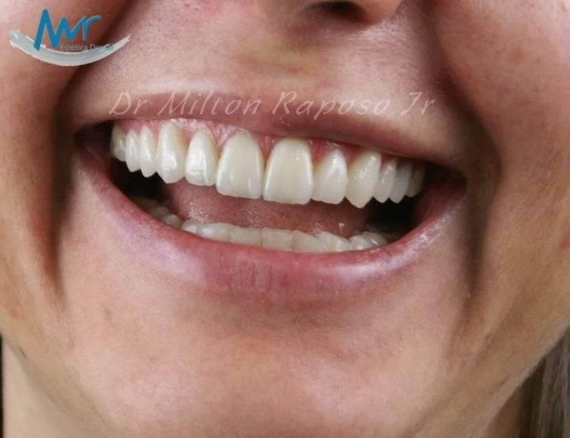 Clinica De Estetica Para Clareamento Dental A Laser Preco Bairro Do