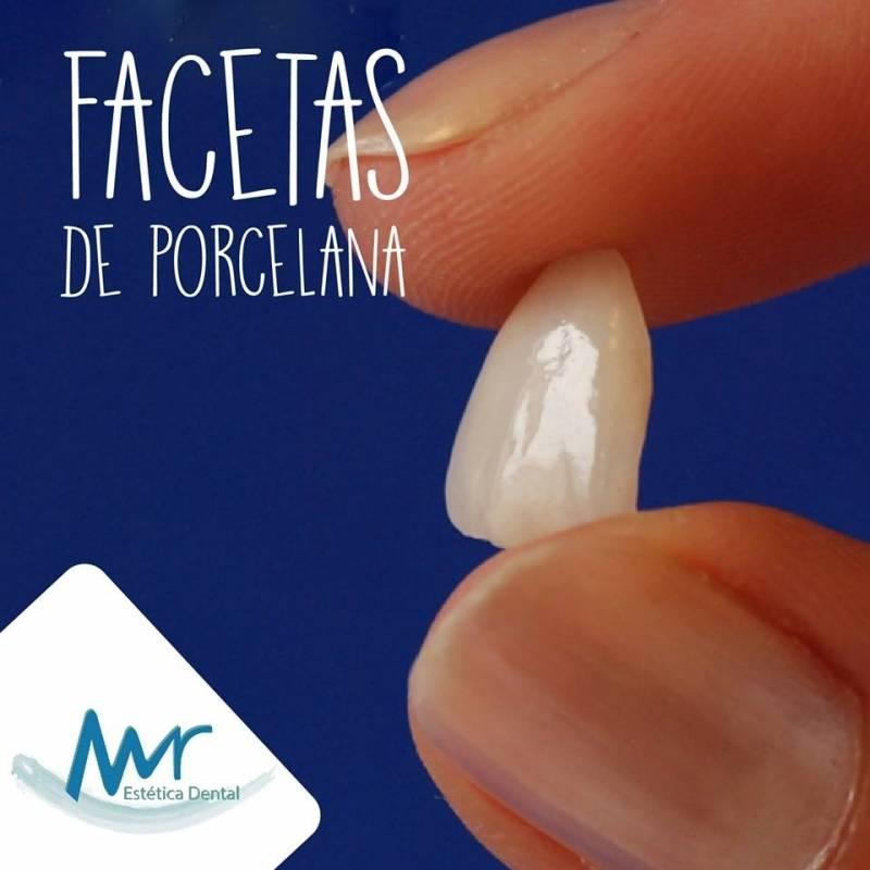 Faceta Dental em Porcelana Preço em Perdizes - Faceta Lisa Dental