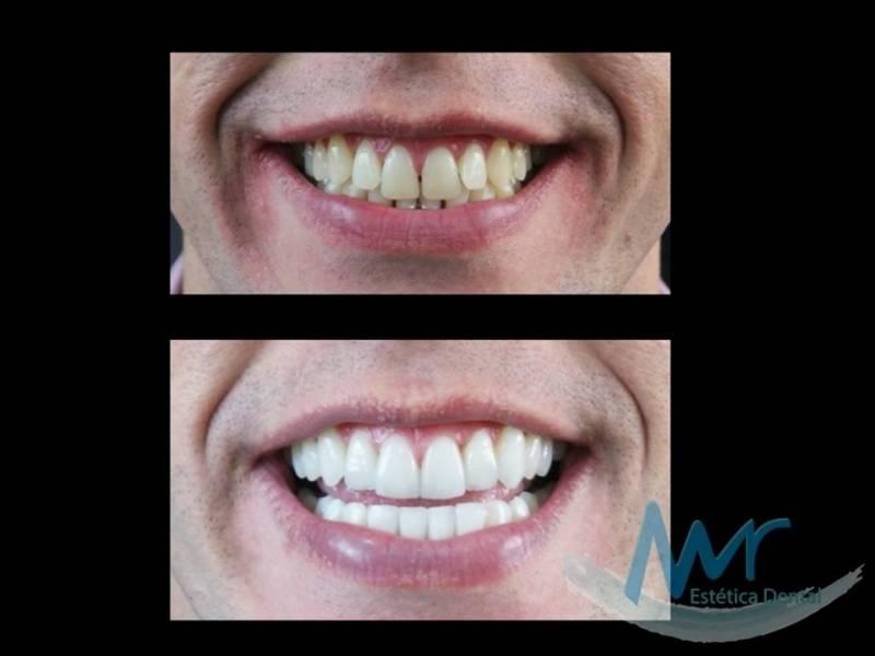 ab3338c3ed955 orçamento de lente de contato dental em porcelana na Vila Anastácio