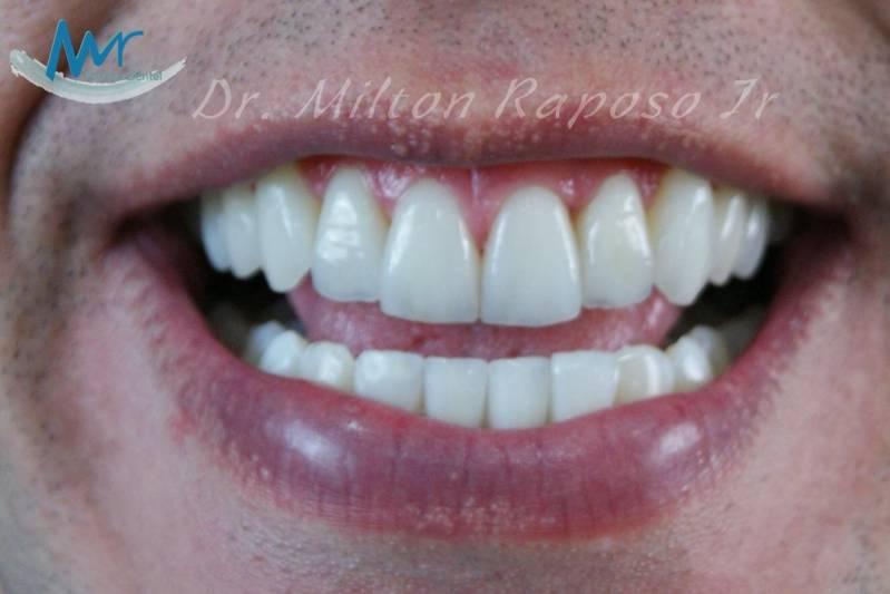 Quanto Custa Lentes De Contato Dentaria Em Higienopolis Lente De