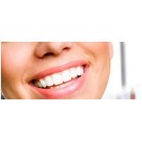 aplicação de botox para corrigir sorriso gengival em São Domingos