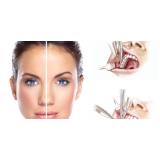 bichectomia odontológica
