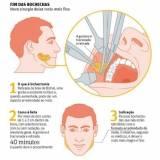 cirurgia de redução de bochechas