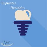 clínica de implante dentário de carga imediata na Vila Anglo Brasileira