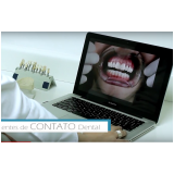 clínica de tratamento de estética para dentes na Vila Romana