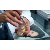 estéticas dentais com dentes separados em São Domingos