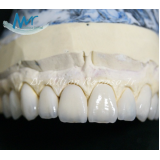 faceta laminada dental preço na Vila Anastácio