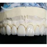 faceta de contato dental
