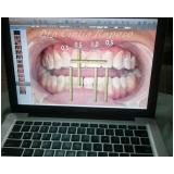 lente para os dentes de contato