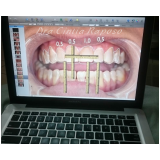 lentes para os dentes de contato na Pompéia