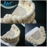 orçamento de faceta laminada dental na Vila Romana