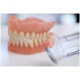 prótese dentária de porcelana