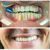 quanto custa implante dentário de porcelana Consolação